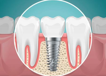 Getting Dental Implants – What to Expect