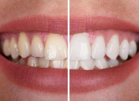 Teeth Whitening – What to Expect