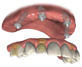 image of four screws in the gum of a mouth that are used for all on 4 dental implants.