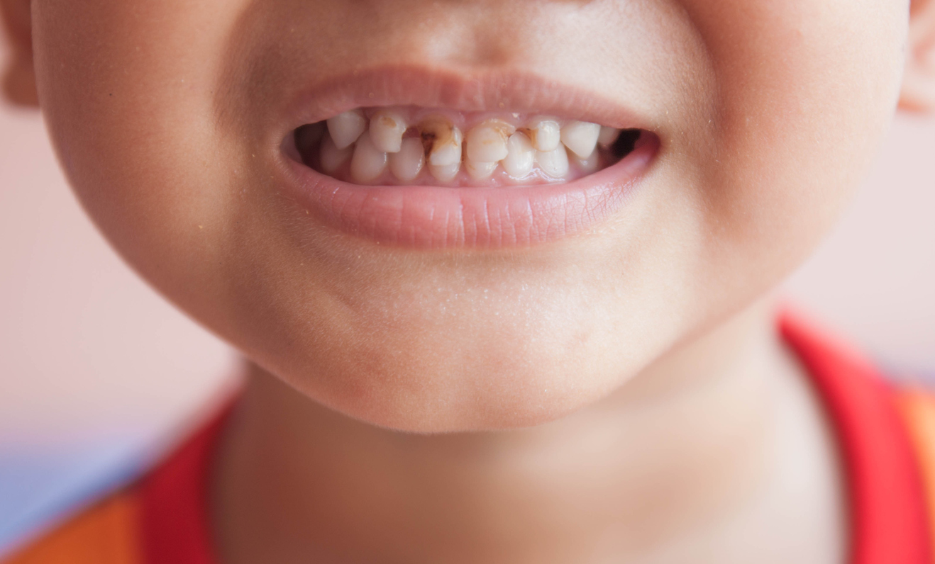 More Tooth Decay Than Broken Arms For Uk Children Gentle