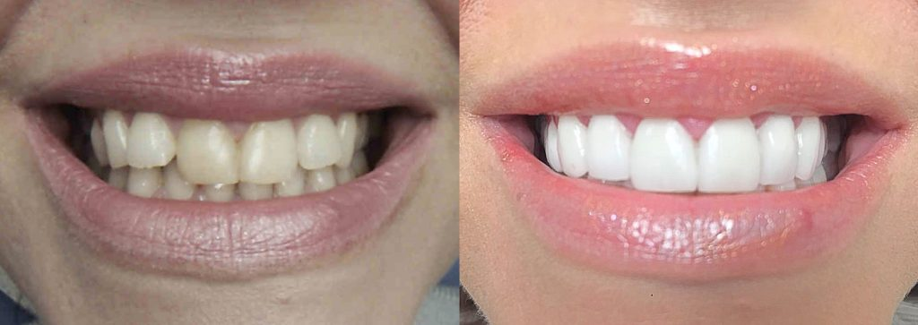 Before and after image of a smile makeover created using crowns and veneers at Gentle Dental care Liverpool