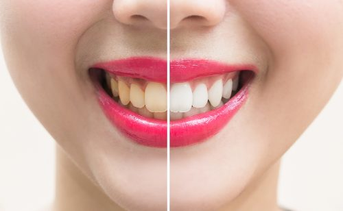 Perfect smile teeth before and after bleaching