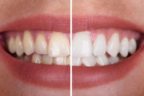 a woman's teeth before and after whitening treatment